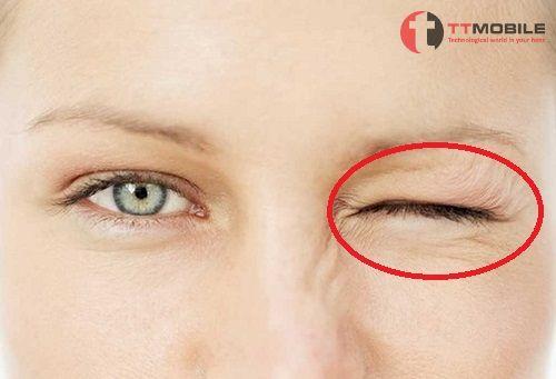 Giật nháy mắt ở Nữ giới